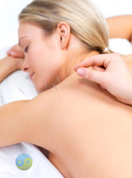 Acupuncture Repentigny : douleur au dos