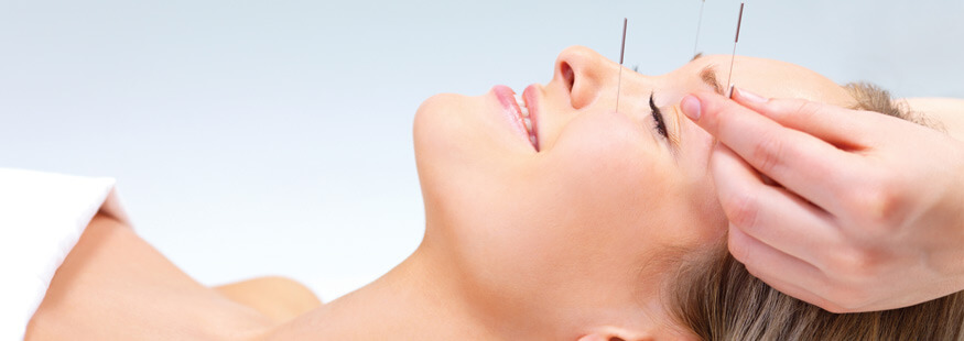 facial lifting par acupuncture