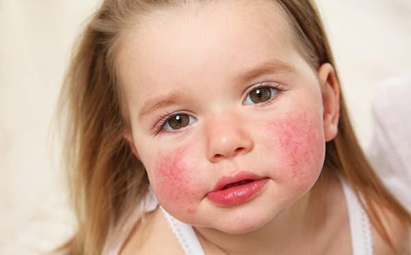 Enfant allergie et acupuncture
